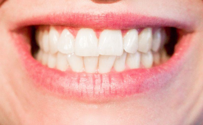 Obecna technika używana w salonach stomatologii estetycznej być może spowodować, że odbierzemy piękny uśmiech.